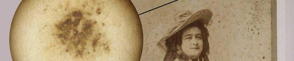 Restauración de fotografías a la albúmina